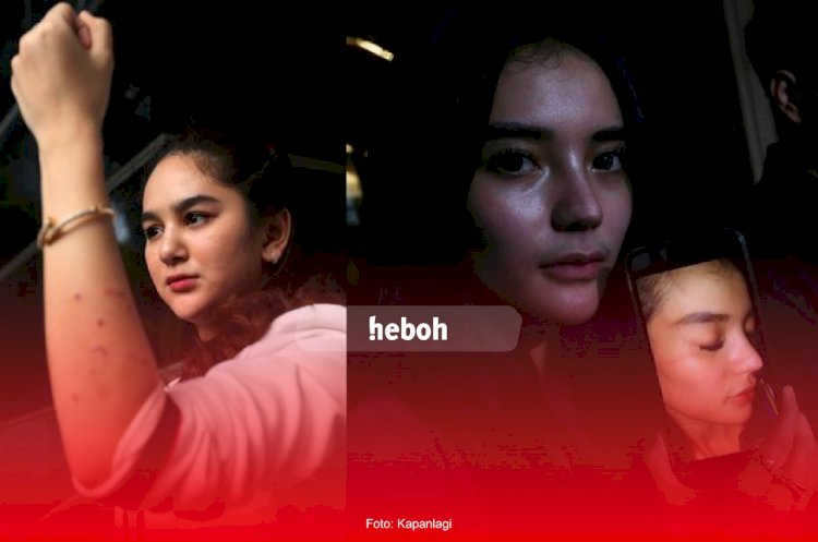 Saling Lapor, Ini Perbedaan Kronologi Penganiayaan Versi Hana Hanifah dan Nabilla Aprilya