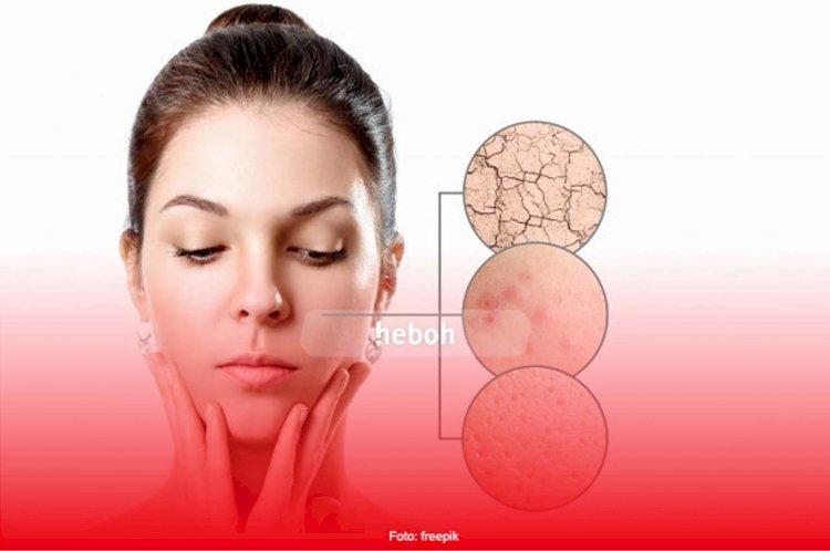 Cegah Sebelum Terlambat, Berikut Ini Kesalahan Pakai Skincare yang Bisa Merusak Wajah